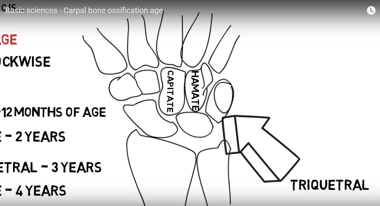 Carpal Bone ossification Age — OrthopaedicPrinciples.com