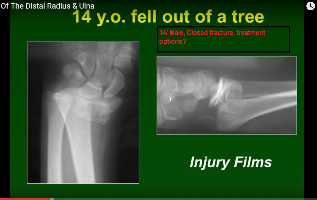 Fractures of Distal Radius and Ulna by Kaye Wilkins MD