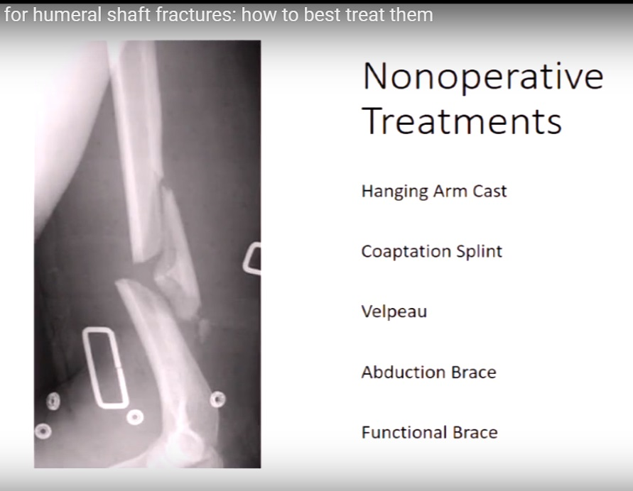Decision making in Humeral shaft fractures