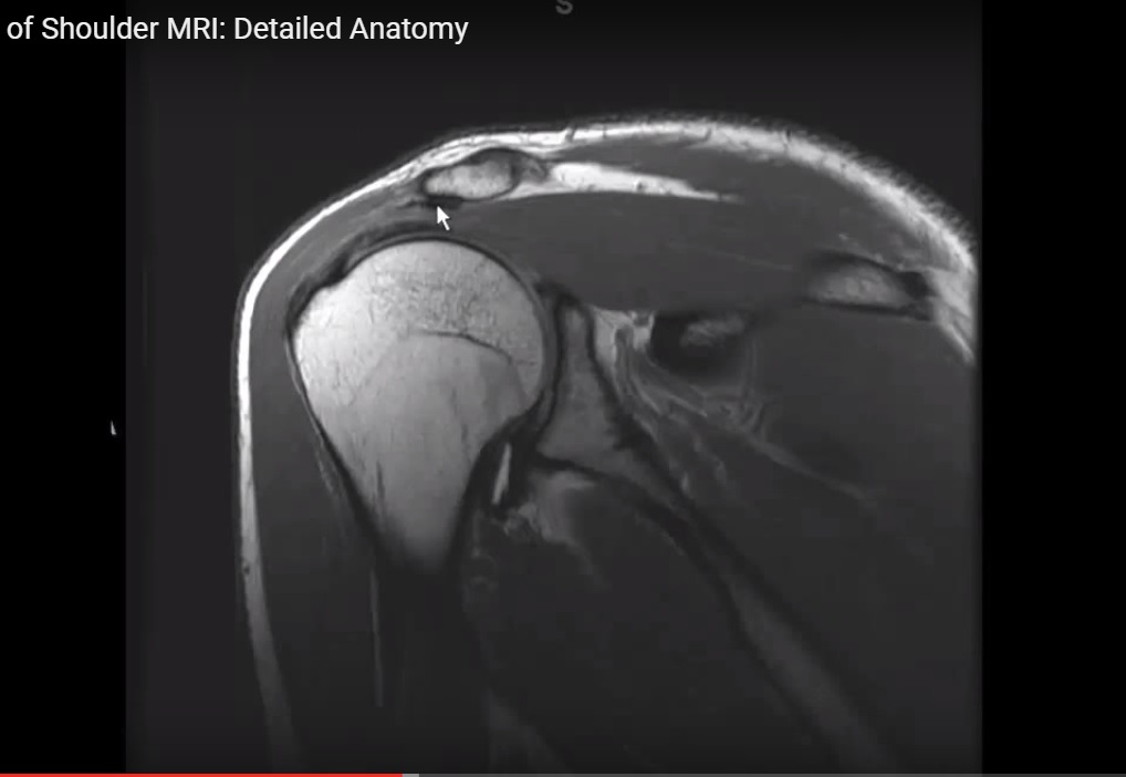 MR Anatomy of the Shoulder