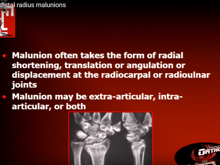 Management of Distal Radial Malunions