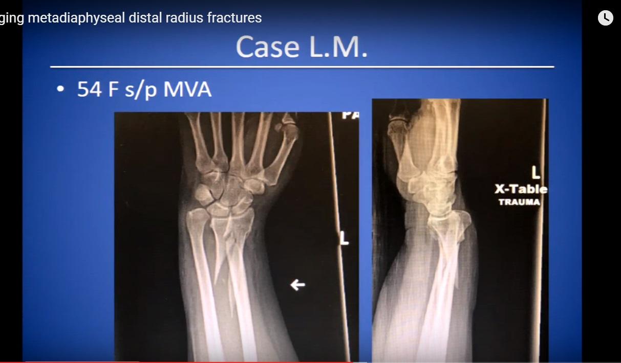 Managing metadiaphyseal distal radius fractures