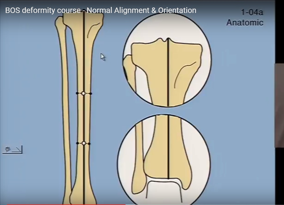 Normal Limb alignment and orientation