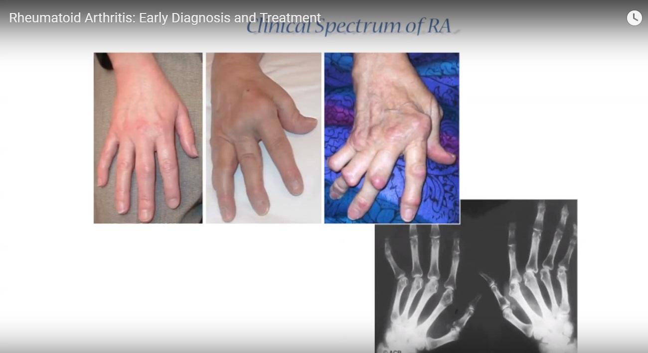 Pathogenesis and treatment of Rheumatoid Arthritis