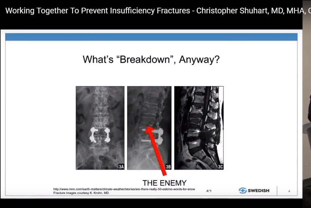 Preventing Insufficiency Spinal fractures