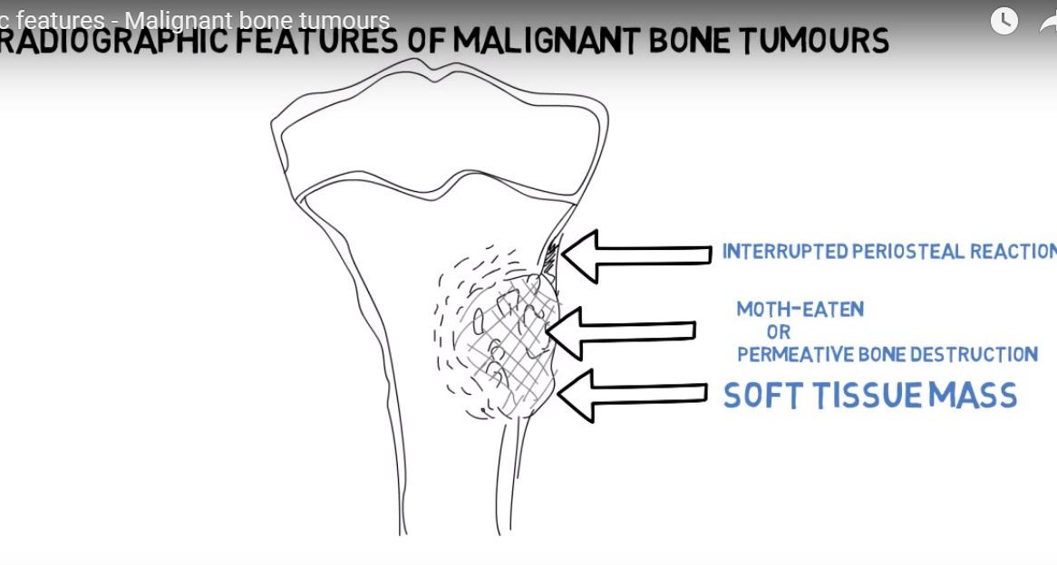 Radiographic Features of Malignant Bone Tumours