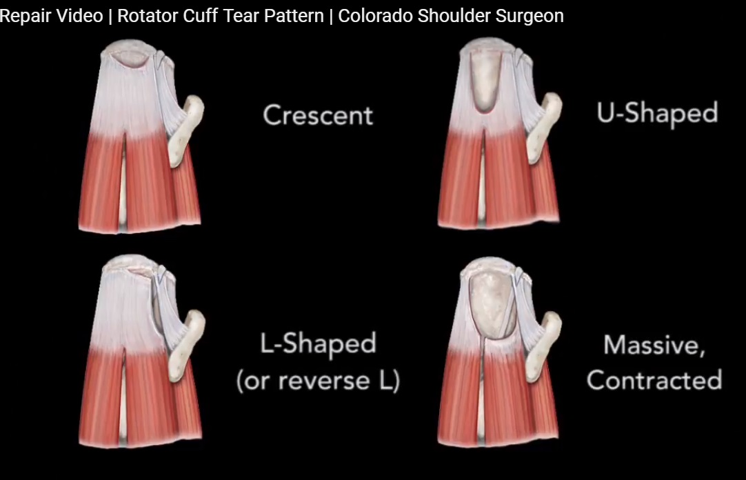 Rotator cuff Tear and Repair