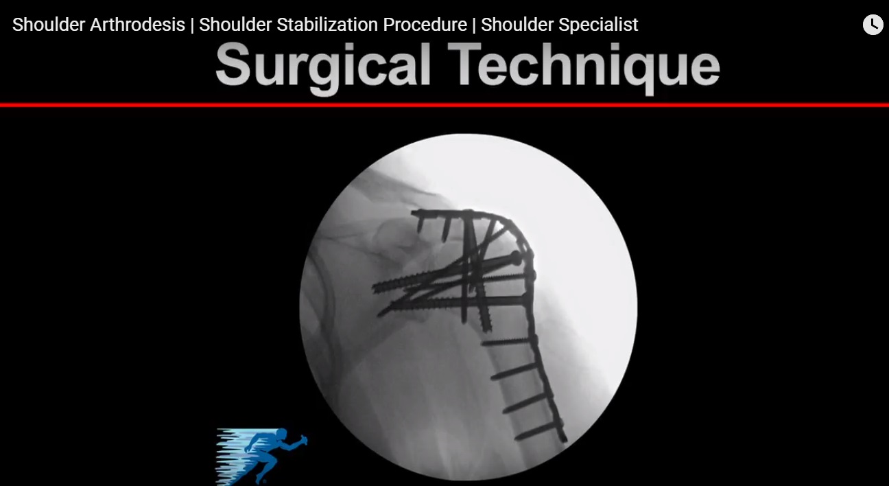 Shoulder Arthrodesis
