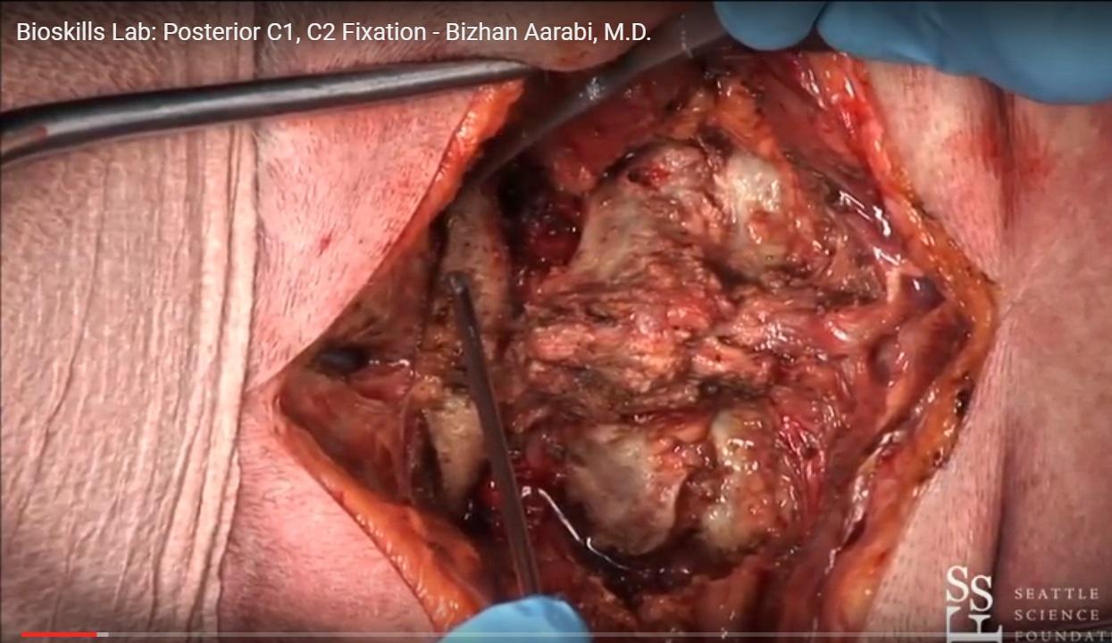posterior c1 c2 fixation