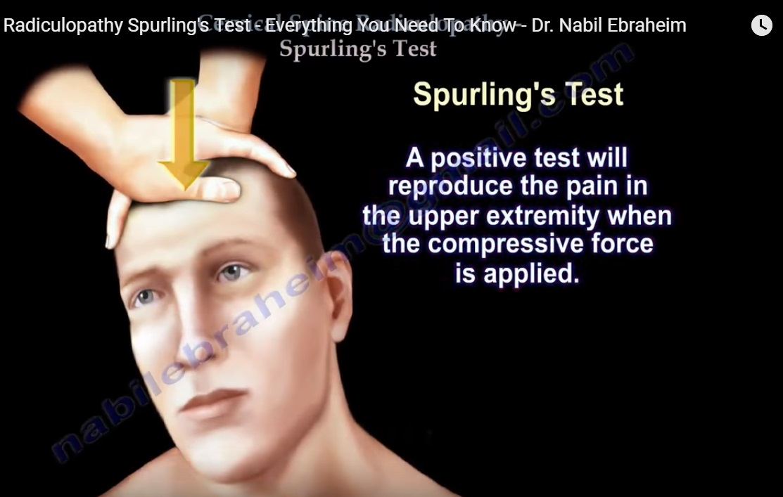 Cervical Spine Radiculopathy and Spurling Test