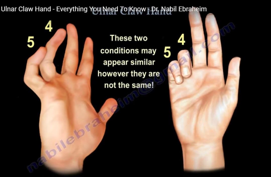 Ulnar Claw Hand — OrthopaedicPrinciples.com