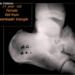 Fractures of foot in children