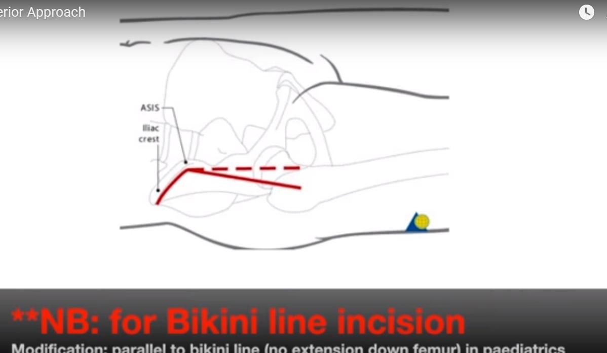 Hip Anterior Approach