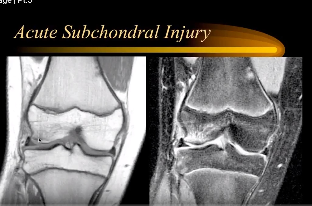 MRI in Articular Cartilage Injury