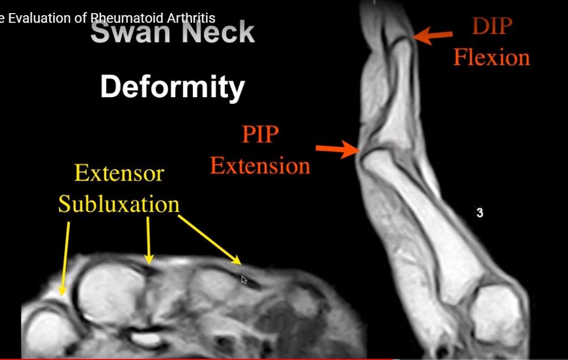 Rheumatoid arthritis radiology mri,