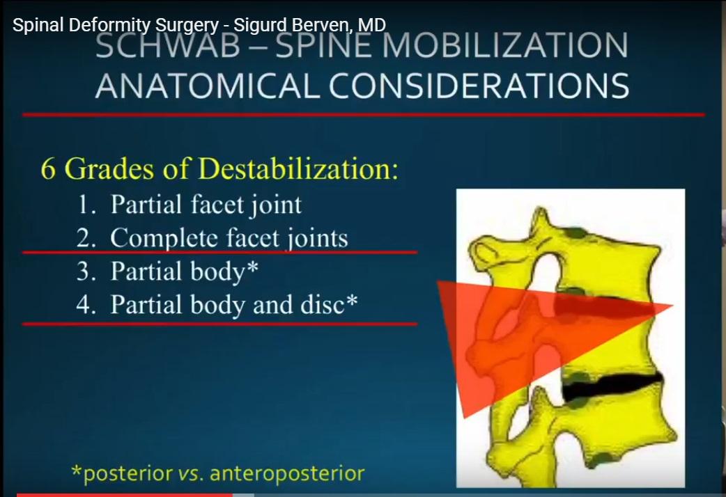 Spine deformity surgery