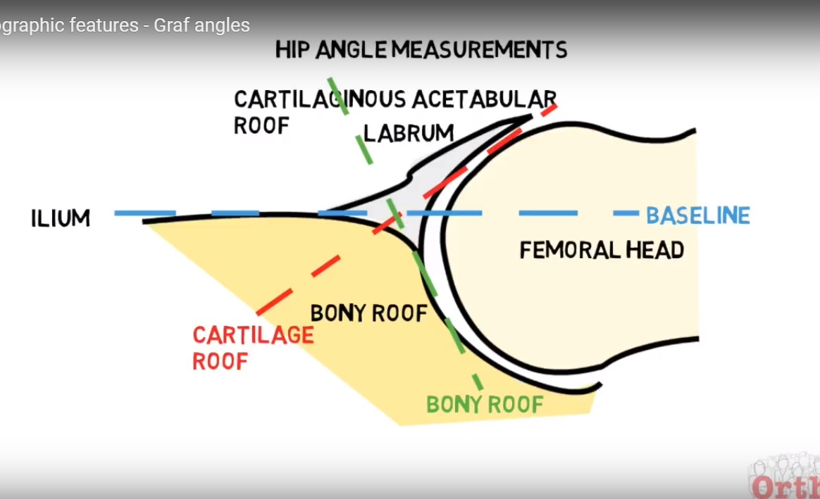 Alpha and beta angles in DDH