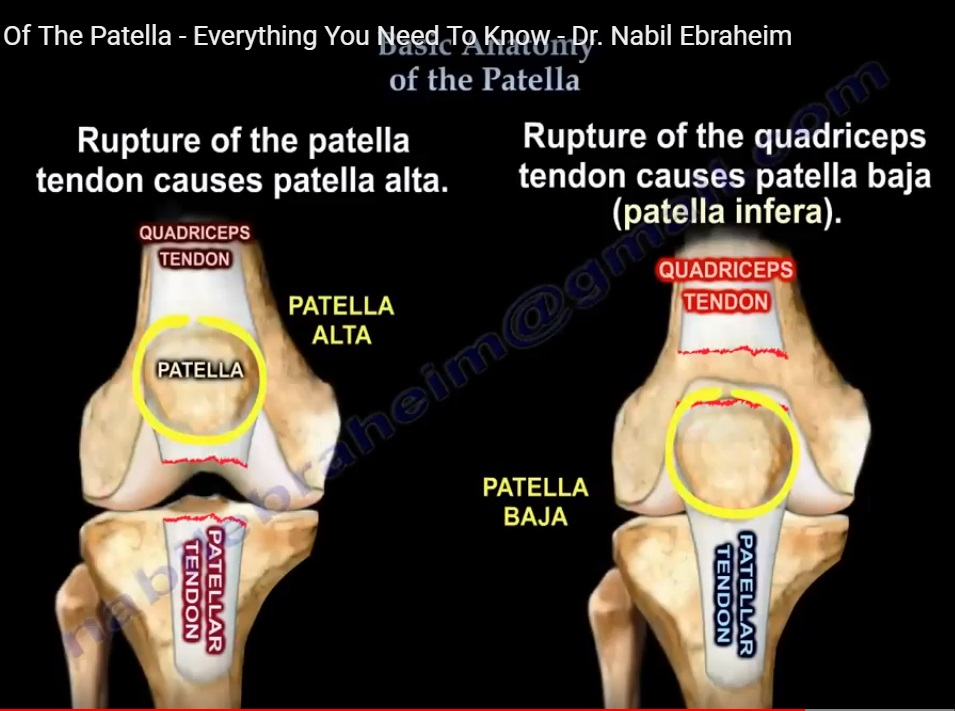 Anatomy And Biomechanics Of The Patella Orthopaedicprinciples