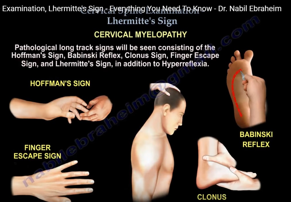 Cervical Spine Examination