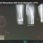 Late Infections in Fractures and Infected Nonunions