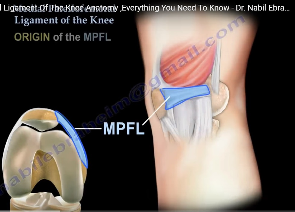 Medial Patellofemoral Ligament Of The Knee Orthopaedicprinciples