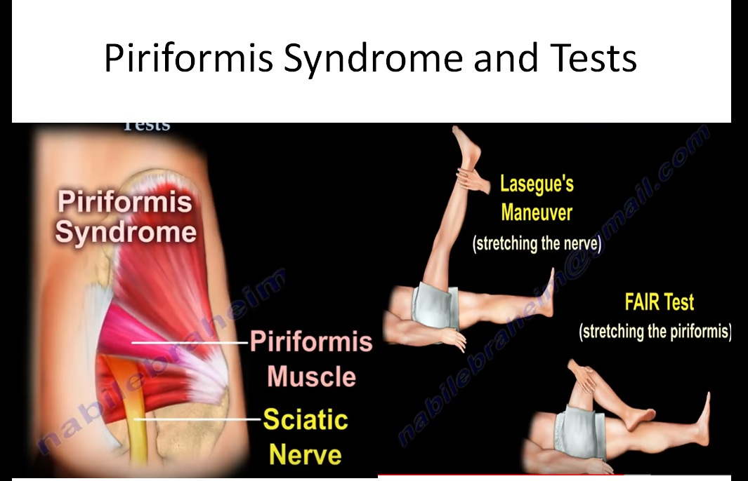 Piriformis syndrome and Tests