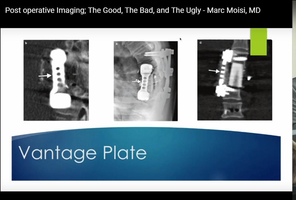 Postoperative Imaging
