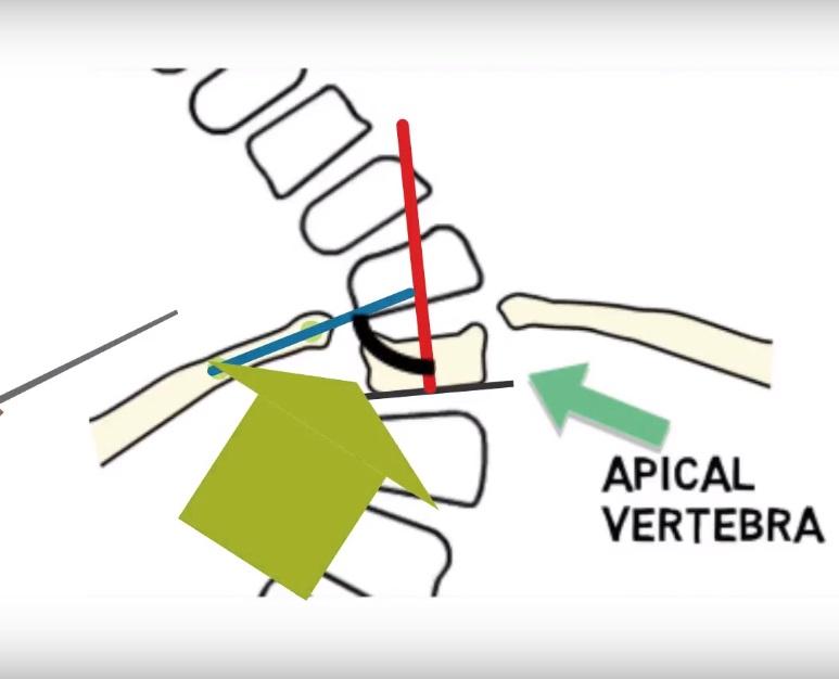 Rib vertebra angle difference