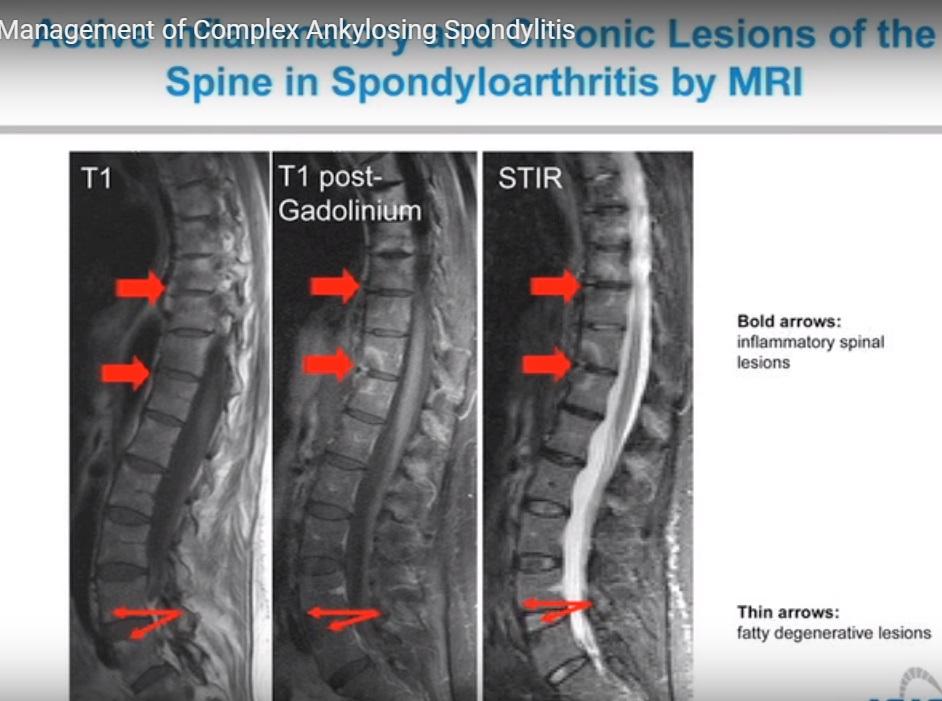 Spine ankylosing