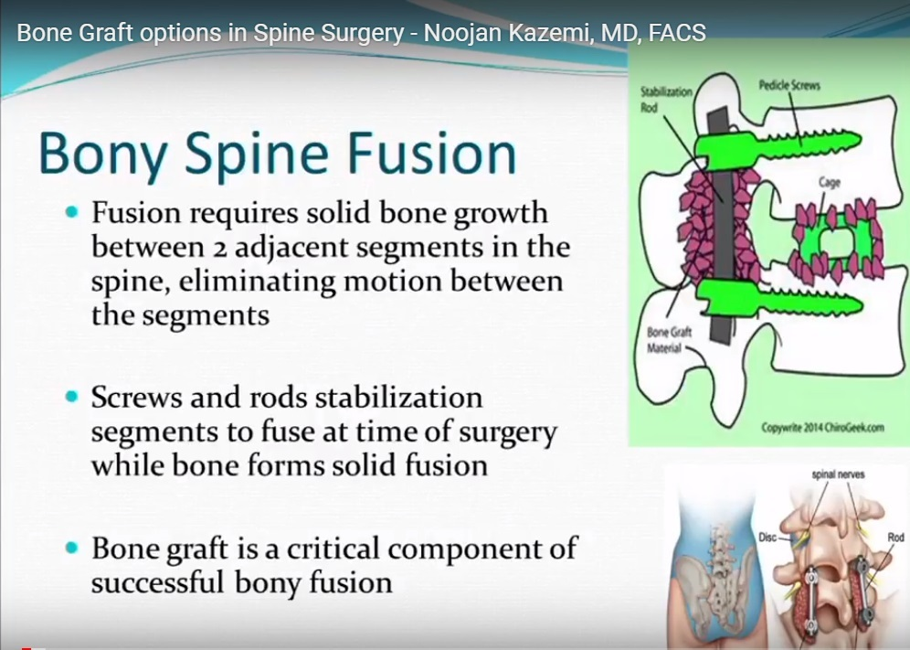 Bone Graft options in Spine Surgery — OrthopaedicPrinciples com