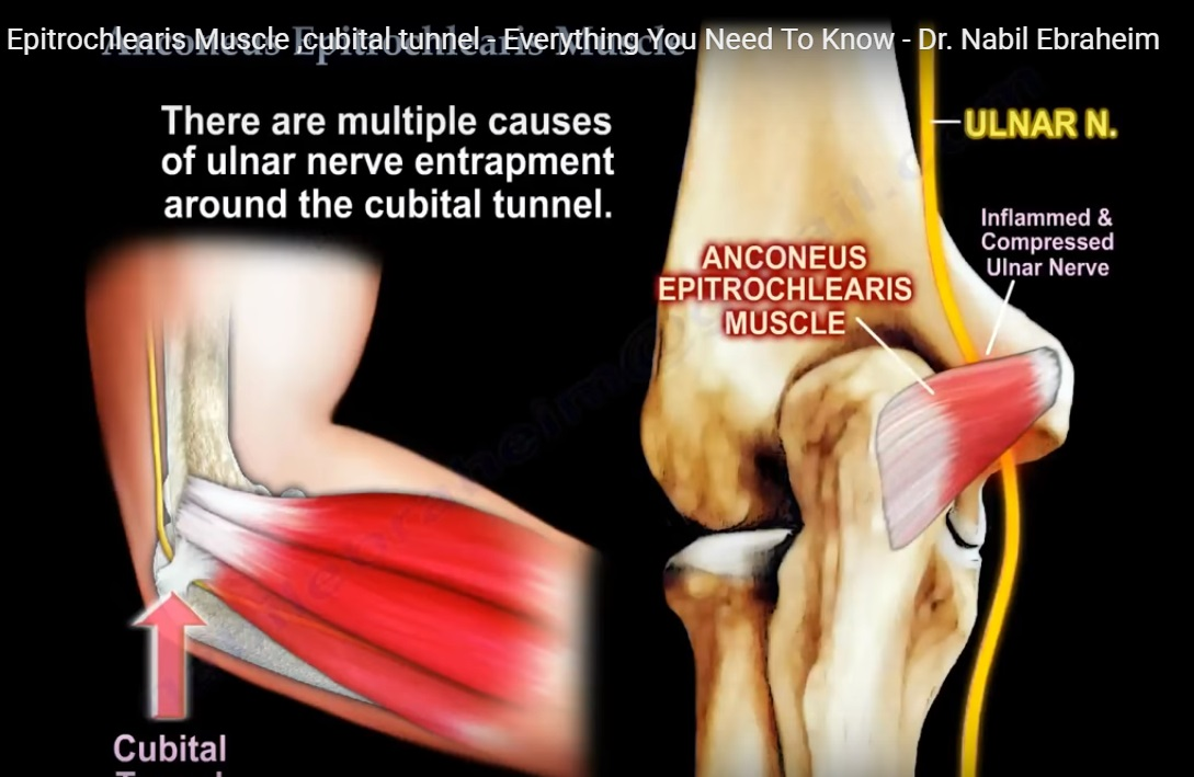 Anconeus muscle and Cubital Tunnel Syndrome — OrthopaedicPrinciples.com
