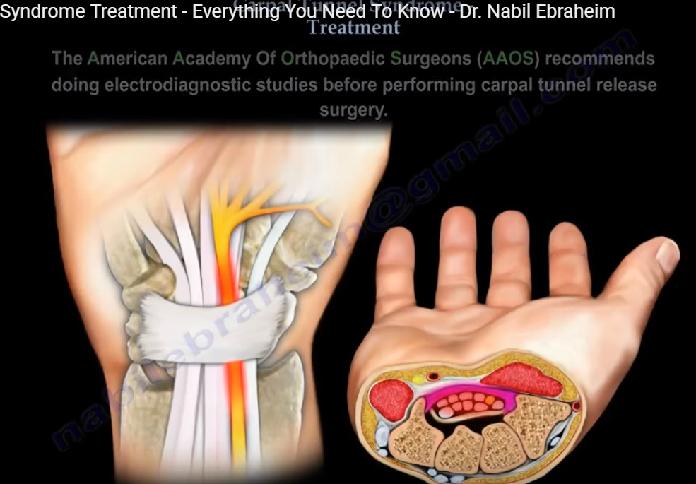 Carpal Tunnel Specialist St Louis