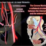 Arteria Corona Mortis