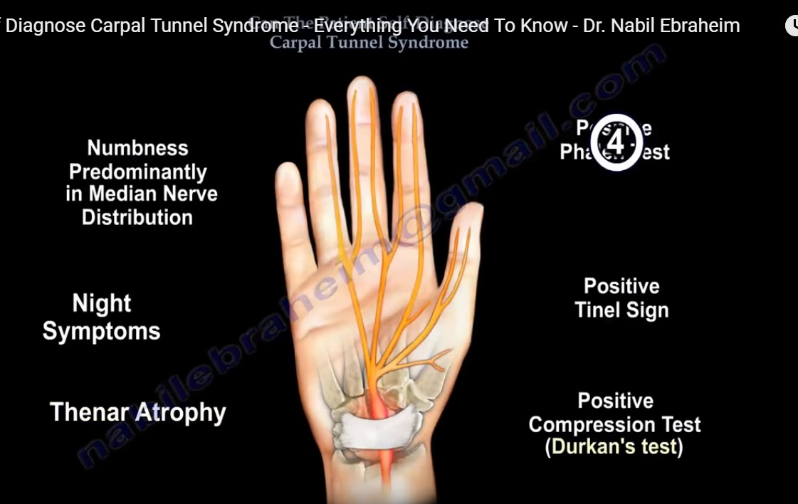 carpal tunnel symptoms - 1121×708