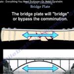 Bridge Plating Concepts in Fracture Healing
