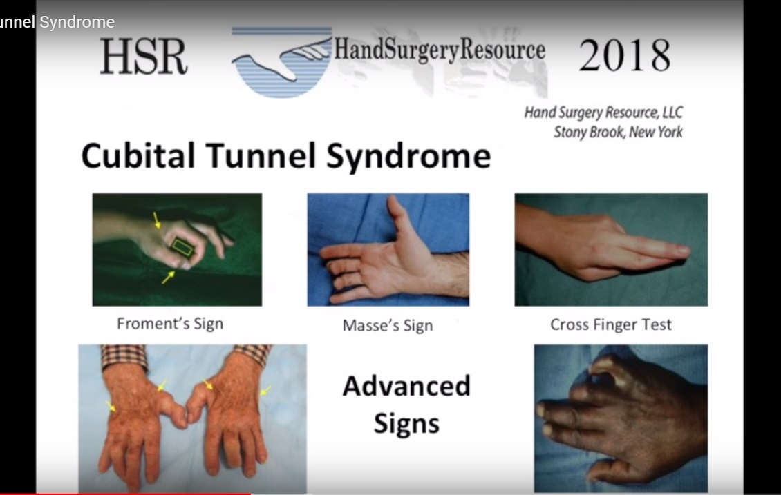 Cubital Tunnel Syndrome — OrthopaedicPrinciples.com