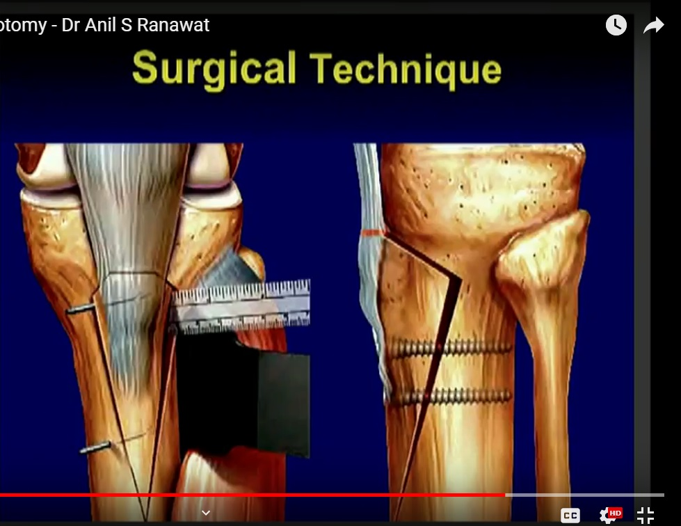 Tibial Tubercle Osteotomy In Patellofemoral Instability