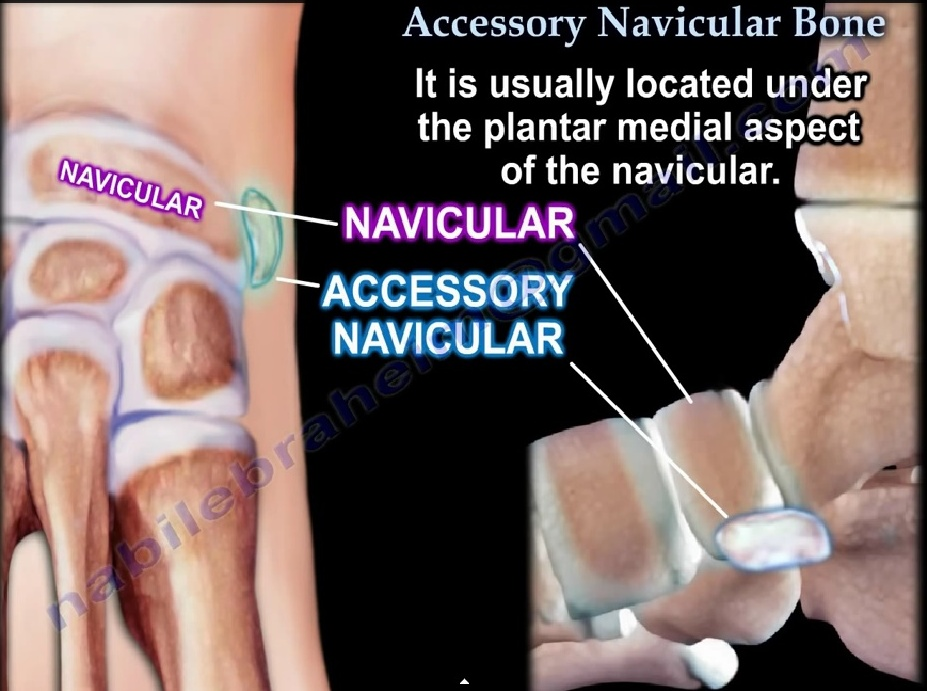 Accessory Navicular Orthopaedicprinciples Com An ossicle of varying size, shape, and position may be found adjacent to the navicular tuberosity. accessory navicular